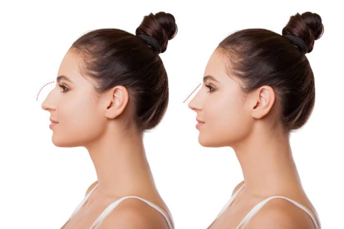 Rhinoplasty Options: The Importance Of Virtual Imagery In Rhinoplasty Surgery